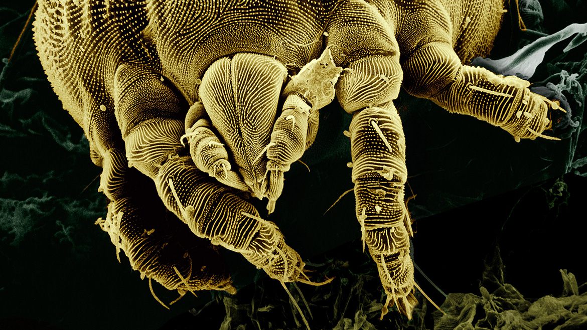 Yellow Mite Magnification
